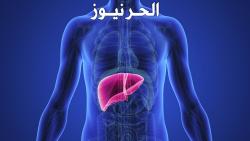 اعراض الإصابة بأمراض الكبد