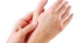 هل يعود لون الجلد بعد الحرق وما افضل سبل العلاج
