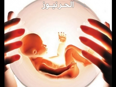 هل الاجهاض في الشهر الثاني مؤلم