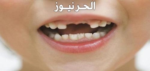 تفسير حلم سقوط الاسنان للعزباء والمتزوجة والحامل والرجل