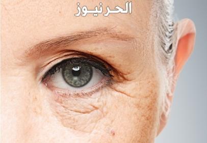 كيفية علاج العين اذا لم يعرف العائن