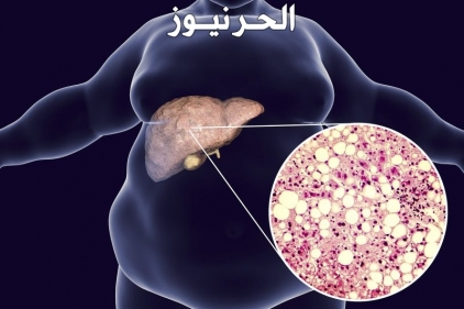 هل الدهون على الكبد خطيرة