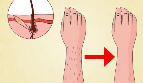 طريقة ازالة الشعر تحت الجلد نهائيا