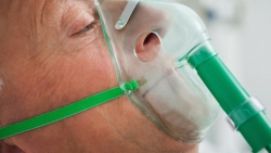 علاج الالتهاب الرئوي واسبابه