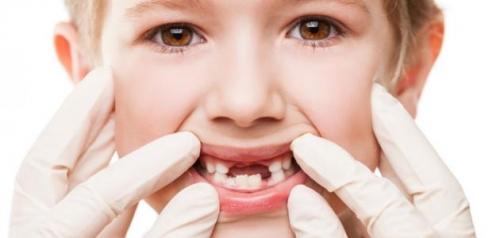 تفسير سقوط الاسنان في اليد للحامل في المنام