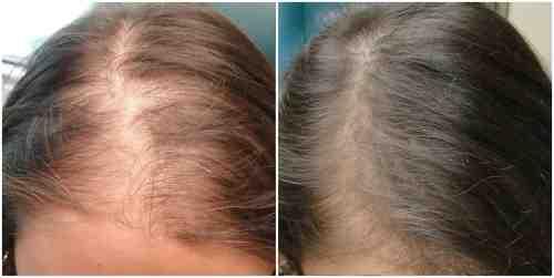 خلطات لتكثيف الشعر الخفيف مجربة
