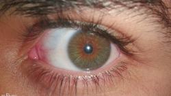 تفسير حلم حول العين في المنام
