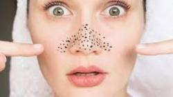 تفسير حلم تنظيف الوجه من الرؤوس السوداء في المنام