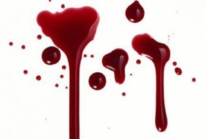 تفسير حلم دم الحيض على الملابس في المنام