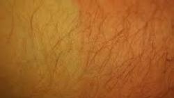 تفسير حلم الشعر الكثيف تحت الإبط في المنام