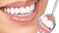 """افضل طبيب اسنان بالرياض """"مجموعة عيادات الفارابي المتخصصة لطب الأسنان"""""""