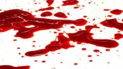 تفسير حلم ترجيع دم اسود في المنام