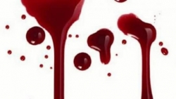 تفسير حلم ترجيع الدم من الفم في المنام
