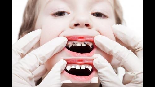 دكتور طارق هاني لزراعة الاسنان بالمملكة