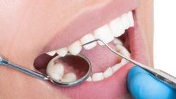 افضل دكتور زراعة اسنان بالرياض