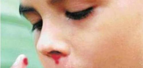 تفسير حلم نزول الدم من الفم في المنام