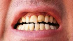 تفسير حلم تفتت الأسنان السفلية في المنام
