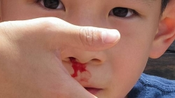 تفسير حلم خروج قطعة دم من الأنف في المنام