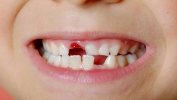 تفسير حلم تكسير الاسنان في المنام