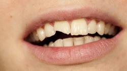تفسير حلم تفتت الأسنان الأمامية للمتزوجه في المنام