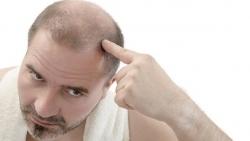 أسباب تساقط الشعر عند النساء وعلاجه