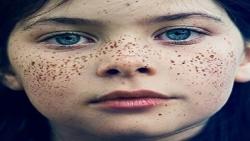 علاج النمش بالتقشير الكيميائي