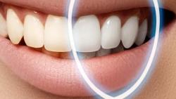 الكركم لعلاج اصفرار الاسنان وتبيضها
