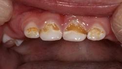 كيفية الحصول على أسنان بيضاء وجميلة طبيا