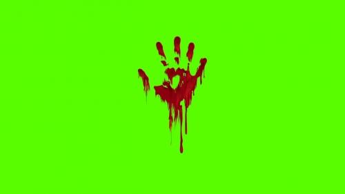 هل القلق يسبب ألم في اليد اليسرى