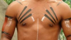 طرق علاج النقط الحمراء الصغيرة على الثدي