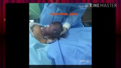 حزام شد البطن بعد الولادة القيصرية