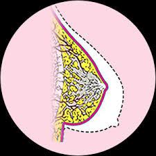 علاقة وجود نقط حمراء في الثدي بالسرطان