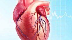 هل عملية القلب المفتوح تسبب الوفاة